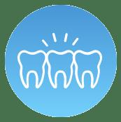 hambaimplantaadid foto