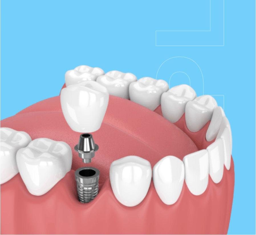 implantaadid hambakliinikus pilt