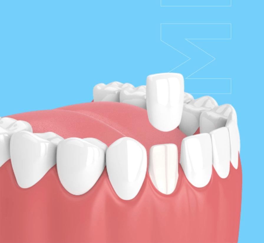 lumineerid hambakliinikus pilt
