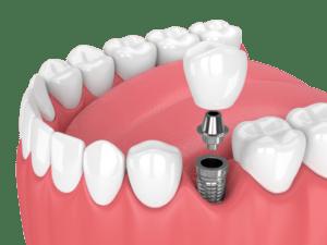 hambaimplantaat pilt