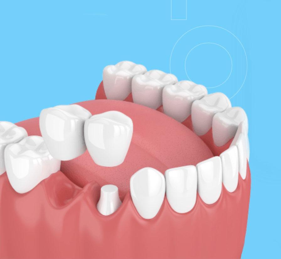 hambaproteesid hambakliinikus pilt
